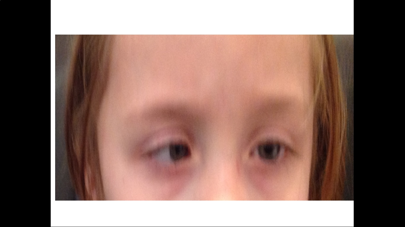 eye turn, strabismus, Shaylers Vision Centre